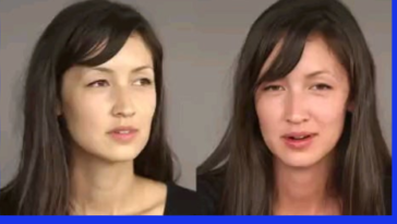 """Alcohol flush reaction , Also known as """"Asian Glow"""" (before and after drinking)"""